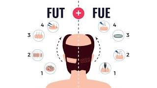 FUSS+FUE Combined Hair Transplant Procedure