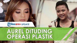 Dituding Pernah Lakukan Operasi Plastik, Aurel Hermansyah Ungkap Alasan Penampilannya Bikin Pangling