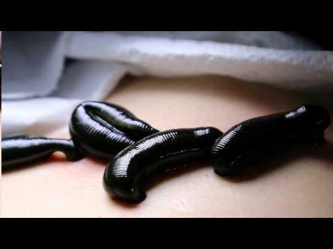 Die Gymnastik für die Abmagerung bei warikose Video