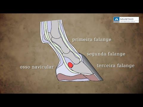 Cascos: doença do navicular