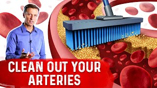 The Best Foods to Clean Out Your Arteries