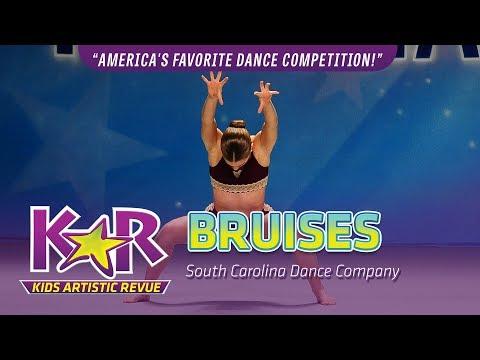 """Bruises"" from South Carolina Dance Company"