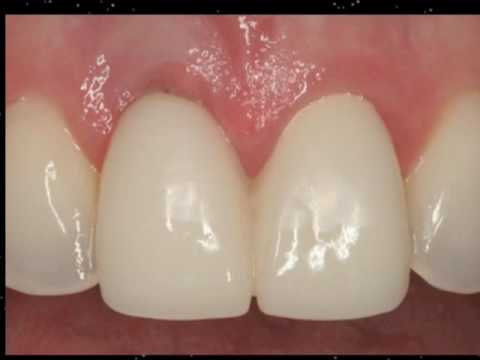 Dental Implants in the Smile Zone- Part 3