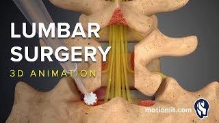 Lumbar Surgery - Laminectomy - 3D Medical Animation