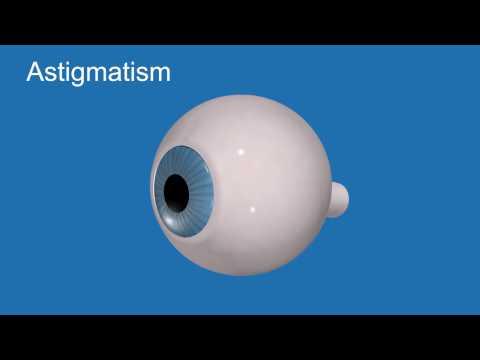 Legume și fructe pentru a îmbunătăți vederea