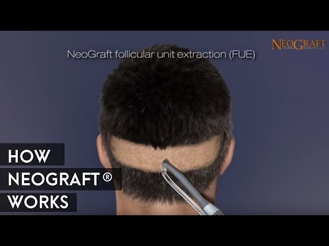 How Neograft Work - Medaesthetics