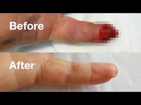 Recenzii ale tratamentului cu folie de artroză