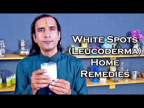 Video Treat White Spots On Skin With Home Remedies by Sachin Goyal @ ekunji.com