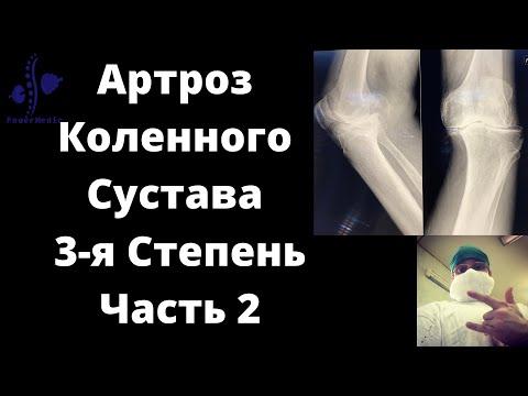 A bordák csigolya osteoarthritisének kezelése