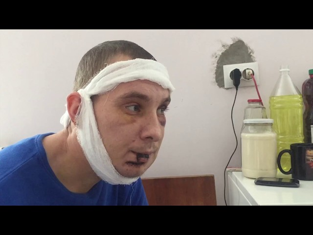 После встречи с полицией ангарчанин угодил в больницу
