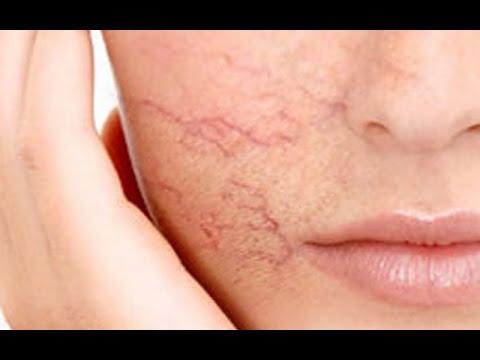 Da mặt nổi mạch máu, điều trị cách nào ?