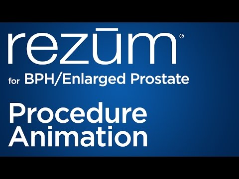 Ecografia mostrò un ingrossamento della prostata