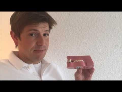 Zahnstein - Erkennen und was kann man tun?