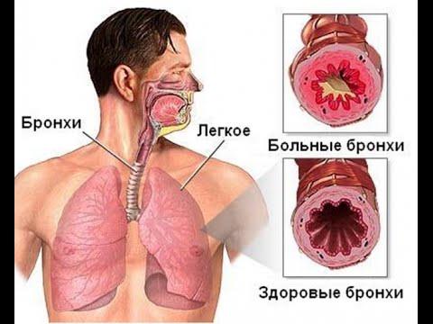 паразиты зубах человека