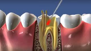 Процесс установки штифта после лечения зуба