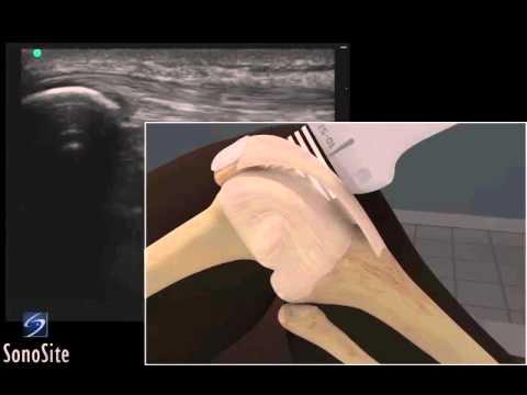 Verband auf das Schultergelenk mit Fixierbandes
