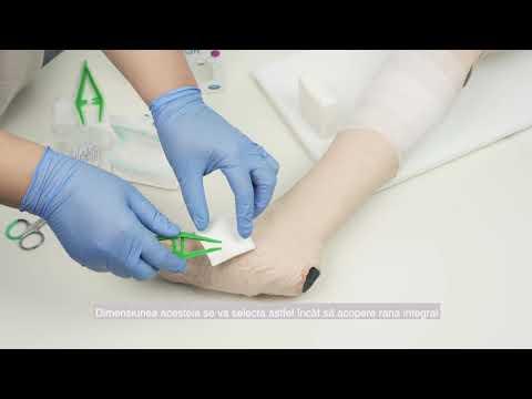Tratamentul comprimatelor și unguentului varicos