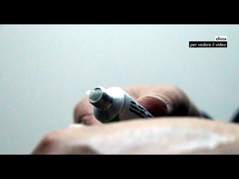 Lattazione di eczema di trattamento