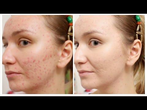 Диагностика по пигментным пятнам на лице