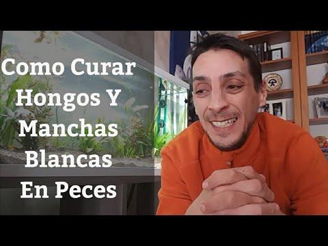Лікування від del hongo en los pies