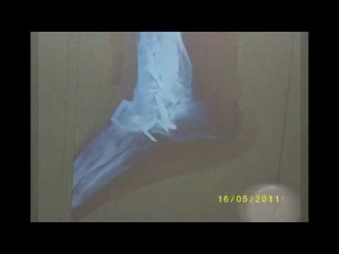 Departamentos de la articulación de la cadera