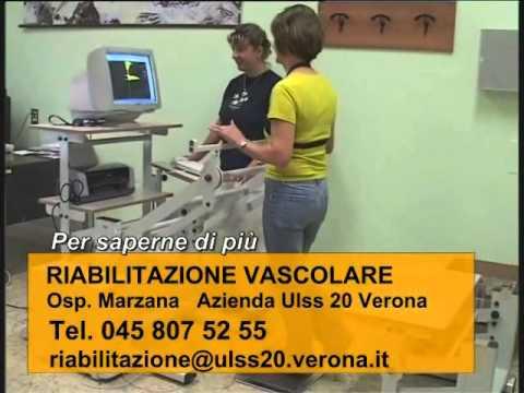 Ragione e trattamento di varicosity