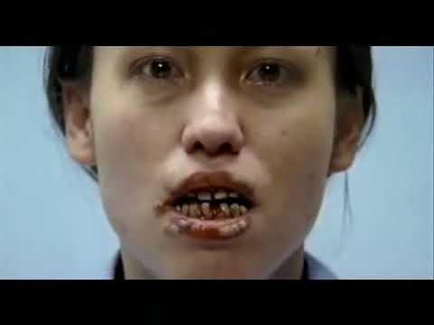 Jak rzucić palenie w Chanty-Mansyjsku