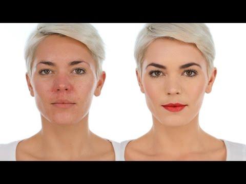 Balat pigmentation nagiging sanhi ng white spots sa