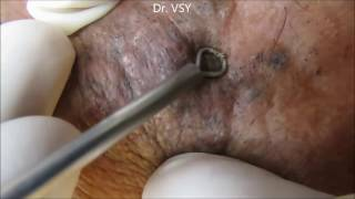 Grading Removal Blackheads On The Face Easy | How To Remove