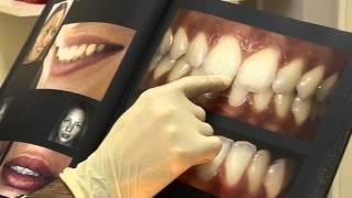 """Изготовление точной копии родного зуба — """"АГАМИ"""""""