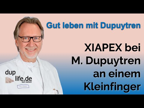 Diabetes-Komplikationen wie i