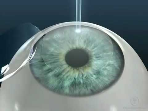 От глазного давления может быть температура