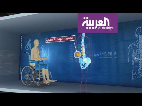العرب اليوم - شاب يستعيد القدرة على المشي بفضل قطب كهربائي