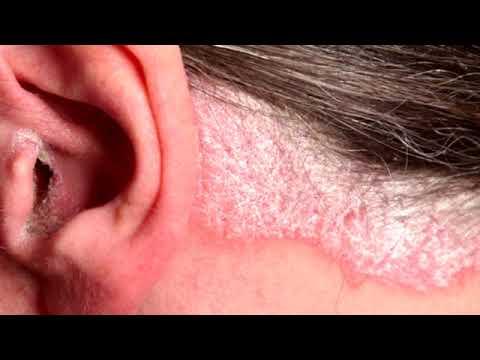 Die Salbe von der Schuppenflechte nicht hormonal kartalin