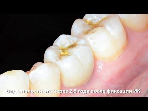 Удаление, одномоментная имплантация в области первого моляра нижней челюсти