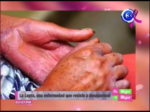 Die Sohlen die Finger der Beine das Ekzem