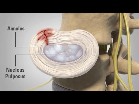 Das ist für Osteochondrose und Hernien der Halswirbelsäule vorgeschriebenen