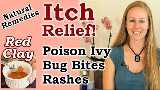 Natural Remedies for Itch Relief! Poison Ivy & Oak,  Itching, Red Clay | Healthy Home Remedy