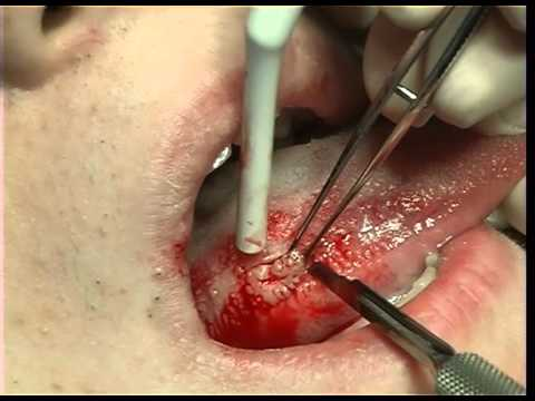 Excisional Biopsy of the Lateral Border of the Tongue
