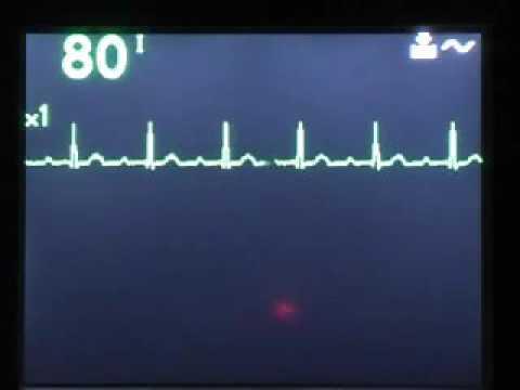 Program je najvažnija stvar o hipertenziji