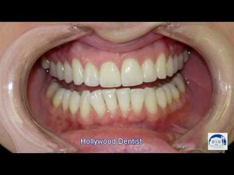 Hollywood Dentist (photos)