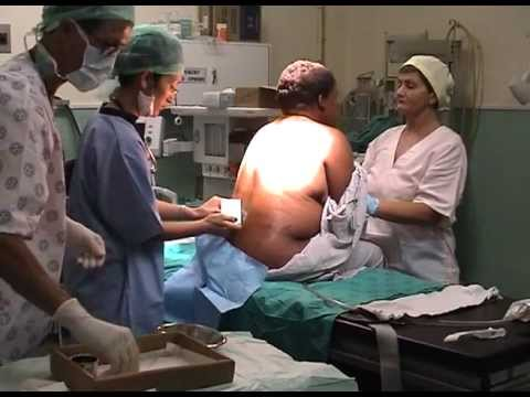Caesarean section evidence-based surgical technique