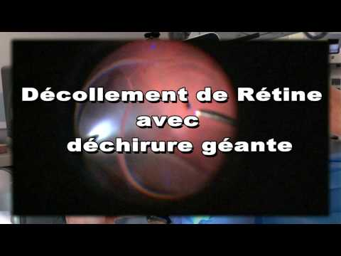 Traitement de brillance de type hypertensive