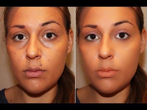 Applicazione di sciocchezze da posti di pigmentary