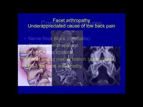 Video UCSF Radiology: Facet Disease: An under-appreciated Cause of Lower Back Pain