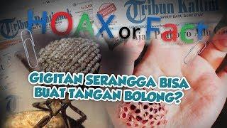 Hoax or Fact: Gigitan Serangga Bisa Sebabkan Talapak Tangan Bolong?