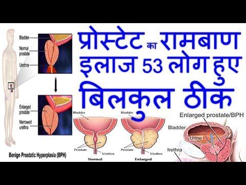 Milch und Prostatakrebs