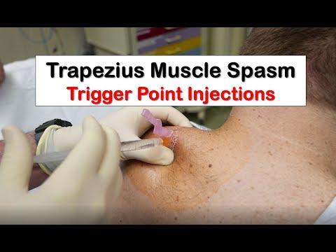 Les douleurs dans les muscles du dos du médicament