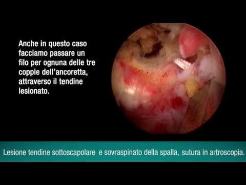 Incurvatura mal di testa osteocondrosi