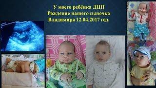 У моего ребёнка ДЦП / рождения нашего сыночка Самборского Владимира Ивановича 12 04 2017 г